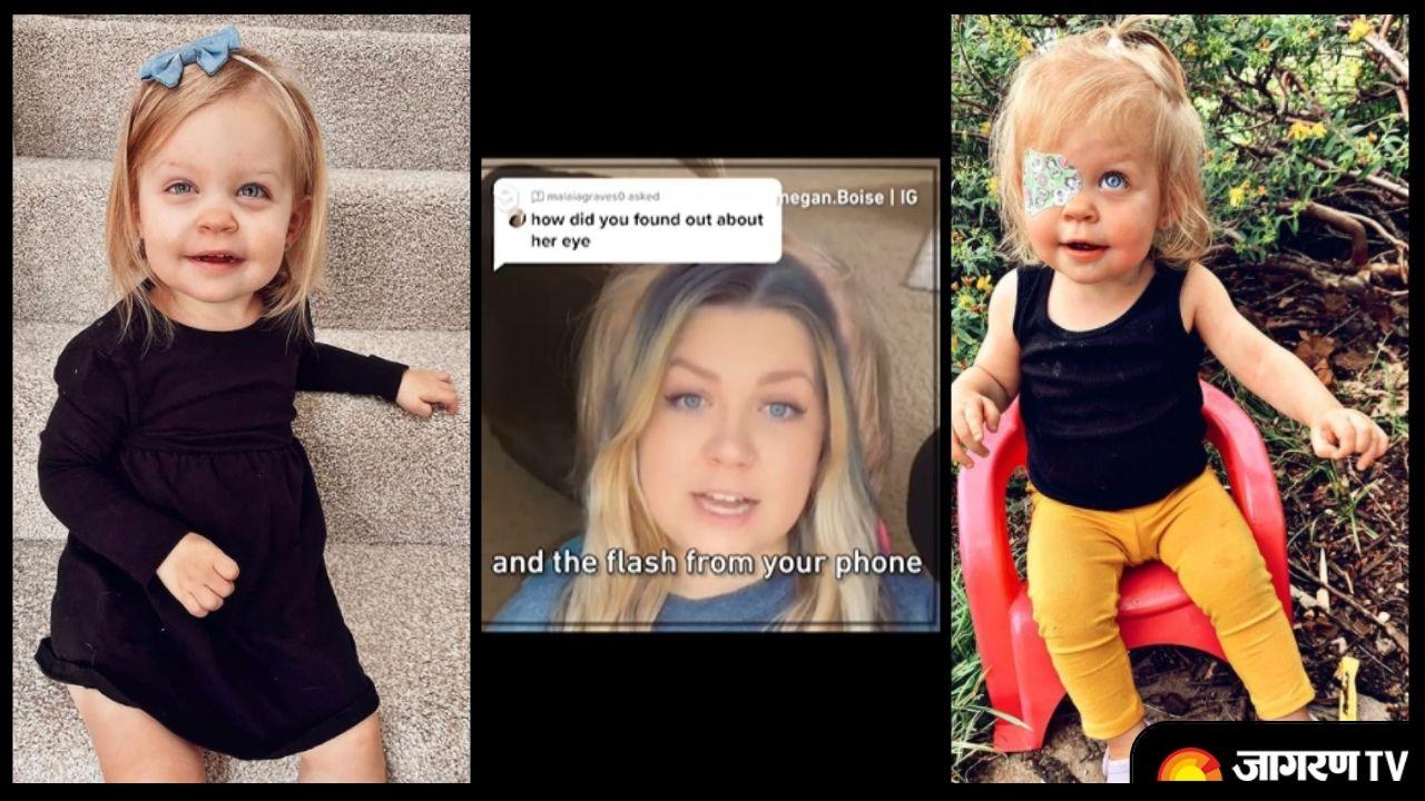 2 साल की बच्ची को था eye cancer, Phone के flash ने बचा ली जान।  देखे वीडियो।