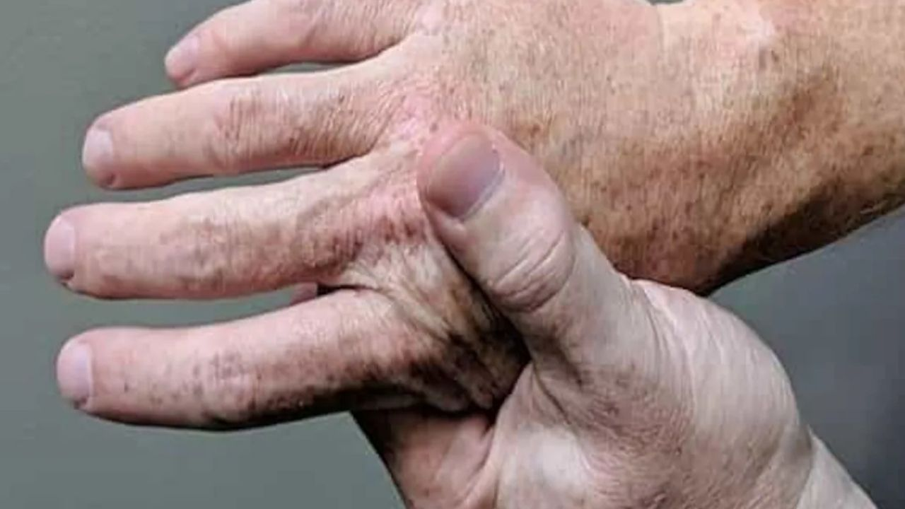 World arthritis Day: Awareness and how to detect the early stage of arthritis